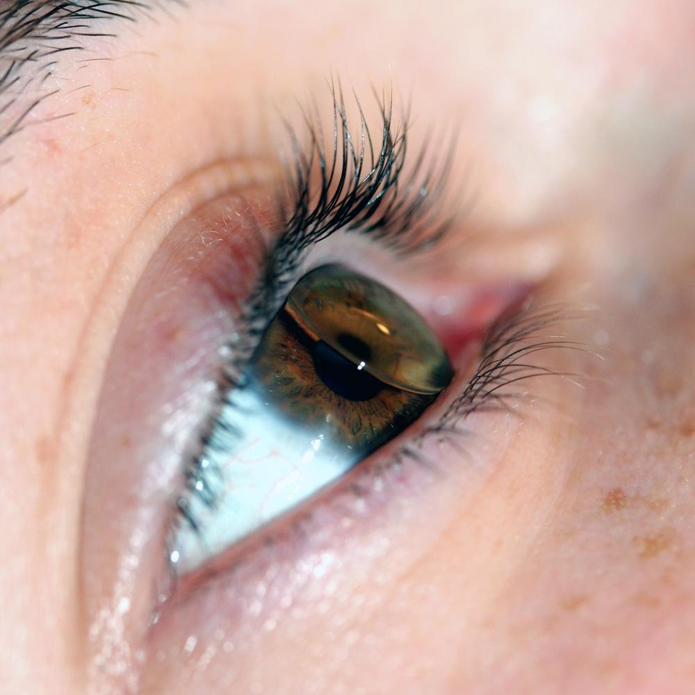 harte Kontaktlinsen Optik Moldaschl